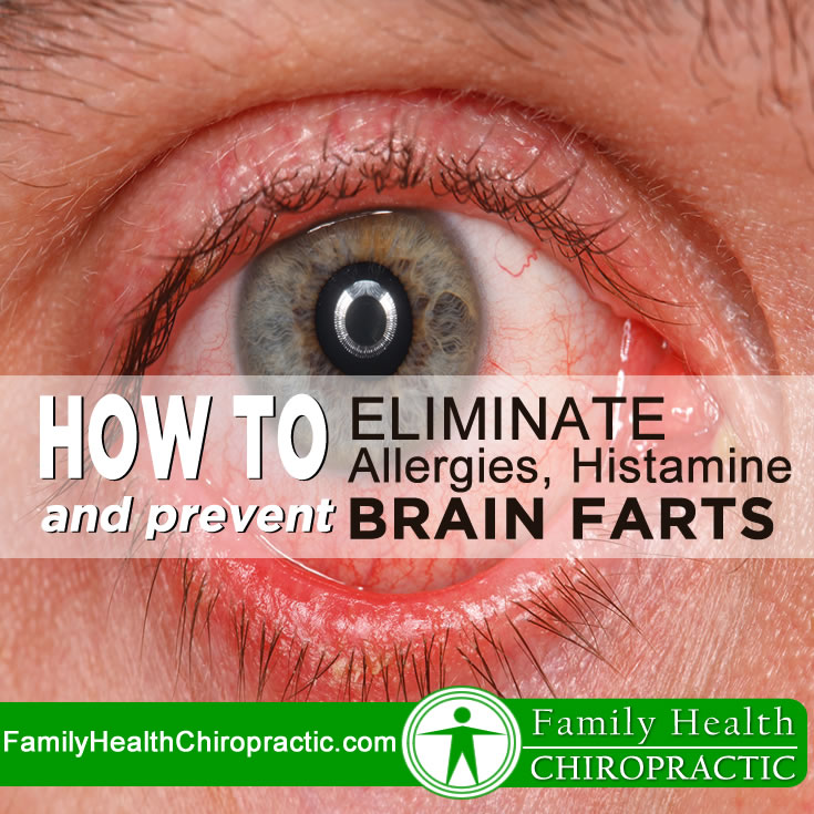 How to Eliminate Allergies, Histamine & Prevent Brain Farts