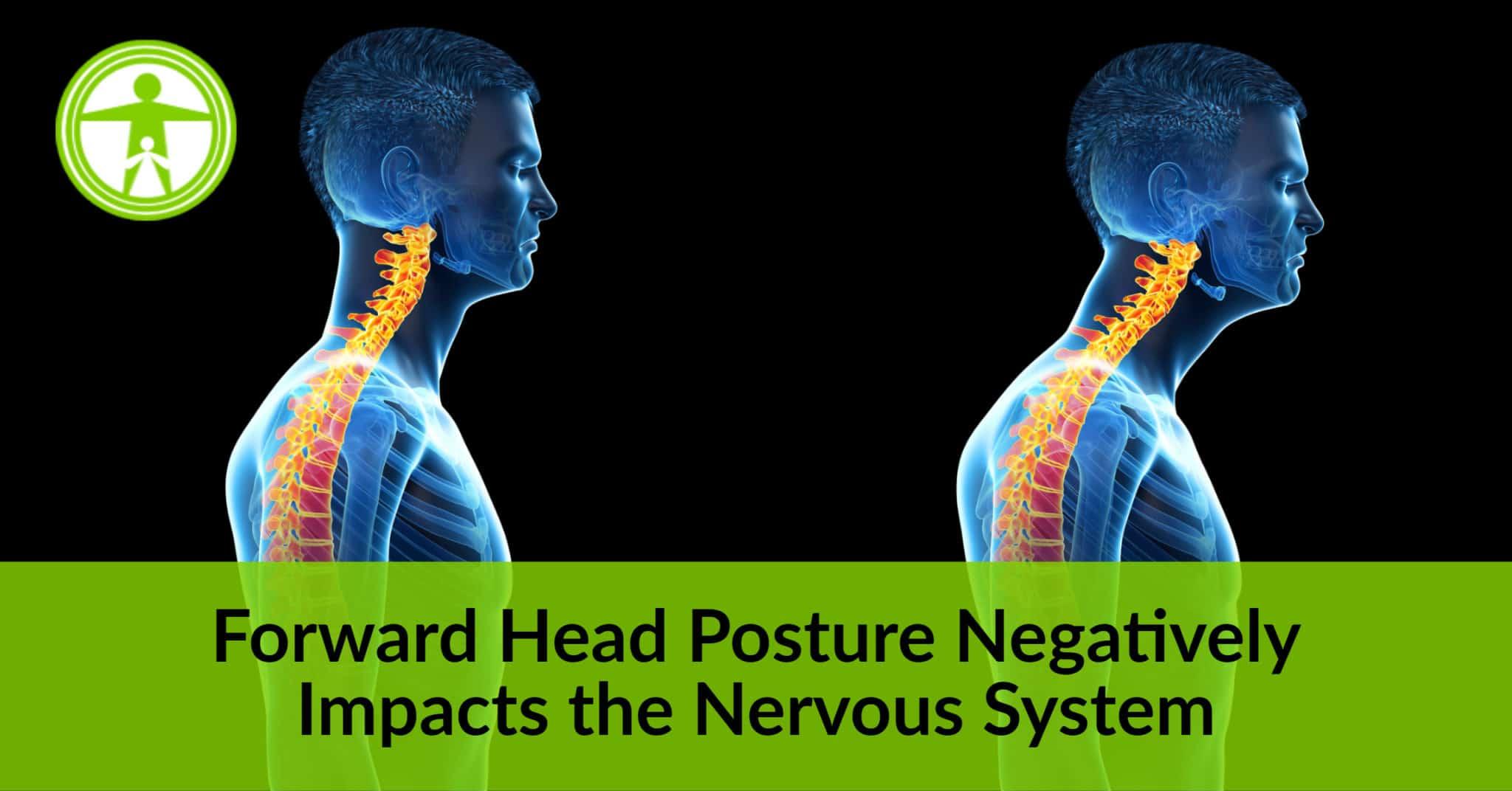 Forward Head Posture
