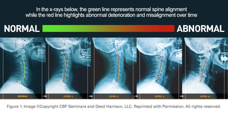 austin-chiropractor-corrects-spine