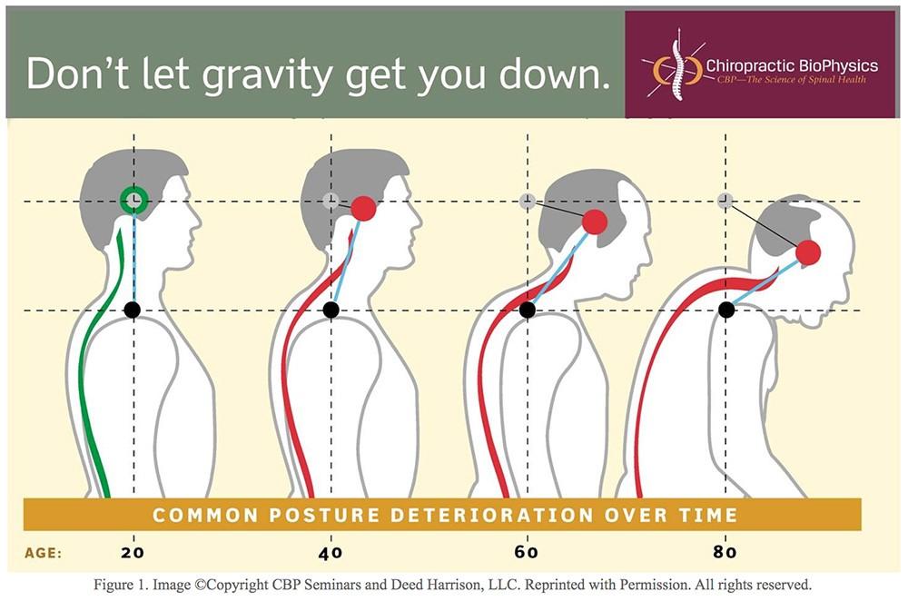 chiropractor-austin-tx-poor-posture