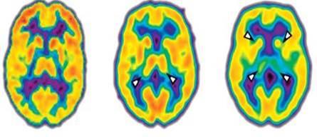 best austin chiropractor brain function