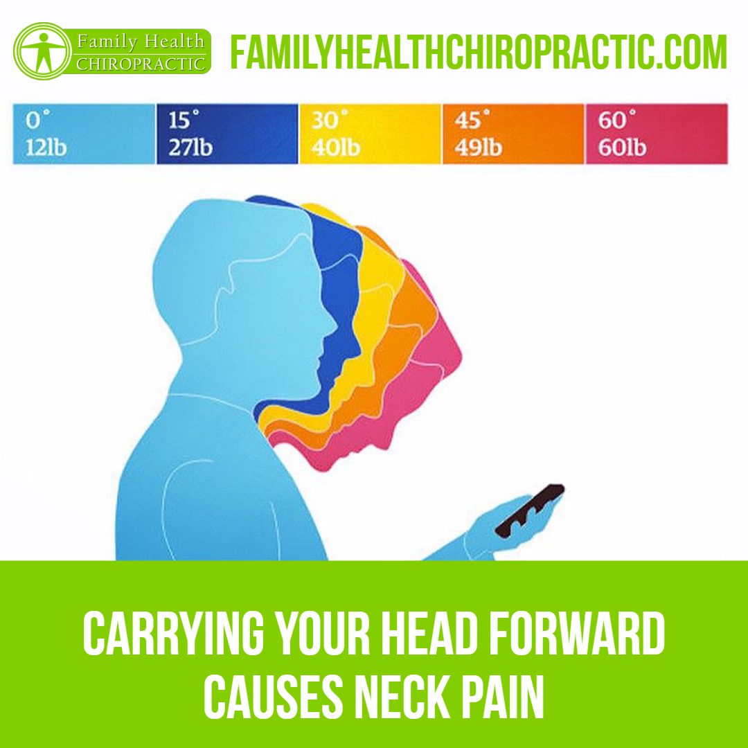 forward head posture neck pain