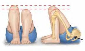 galeazzi test for uneven legs