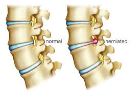 herniated-disc-austin-chiropractor
