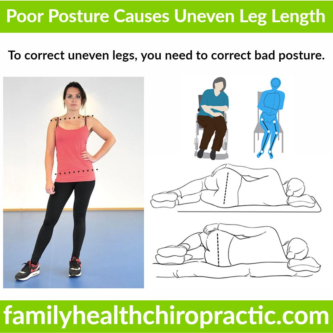 poor posture causes uneven legs