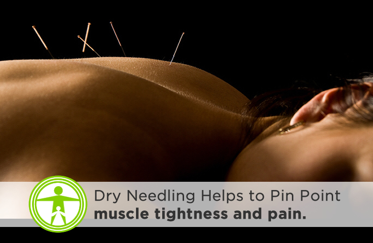 Dry Needling - Trigger Point Therapy