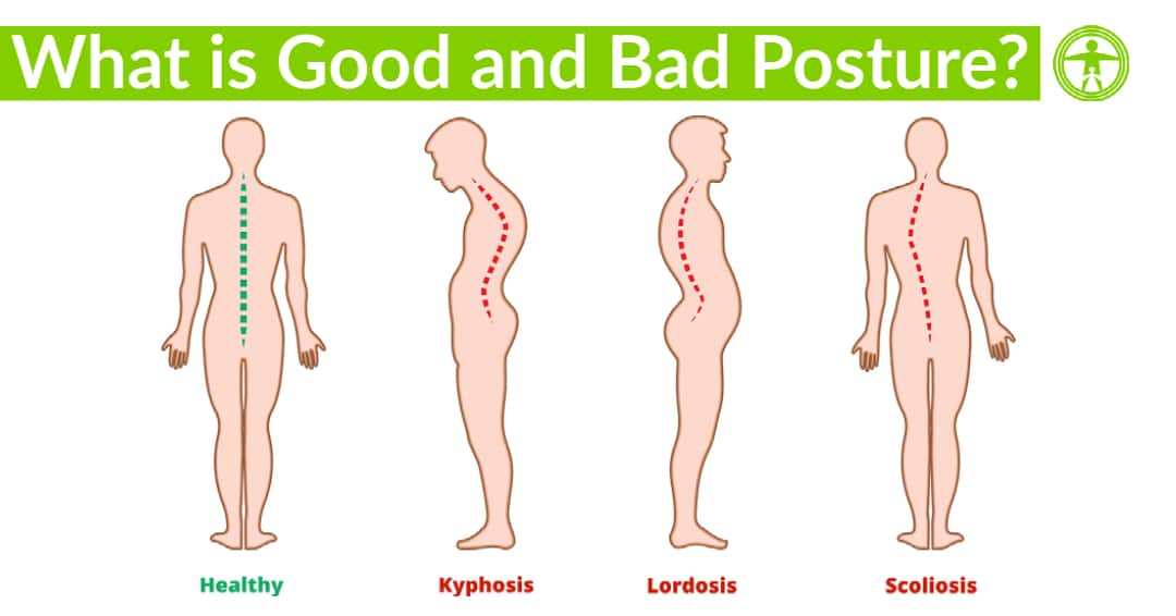 what is good and bad posture
